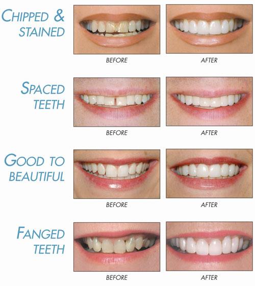Lumineers Miami Beach Fl Cosmetic Dentistry Miami